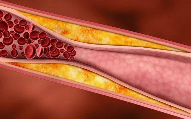 Xơ vữa động mạch gây đột quỵ