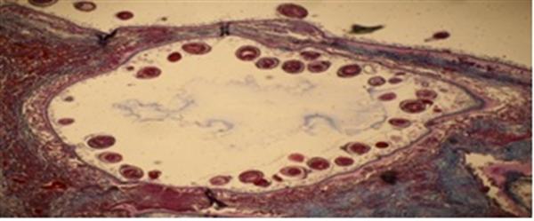 bệnh ký sinh trùng