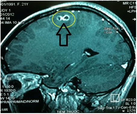 Sán chó ký sinh trên não bộ bệnh nhân