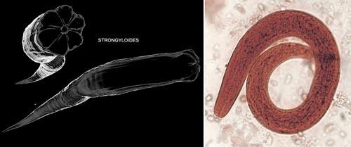 ký sinh trùng