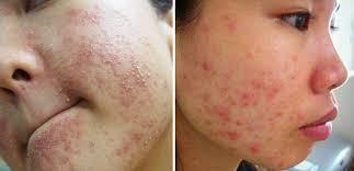 Những dấu hiệu bị ngứa da do dị ứng
