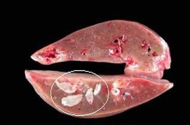 sán lá gan: phương pháp điều trị và chi phí chữa bệnh sán lá gan