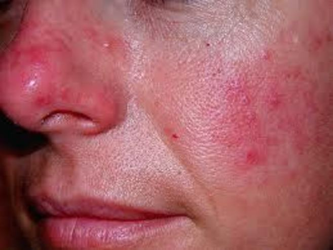 Triệu chứng dị ứng ngứa da mặt do Demodex